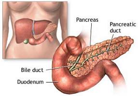 Sintomi del diabete: Produzione insufficiente di insulina dal pancreas